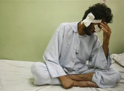 voter-mutilated-by-taliban NARIZCORTADA HOMBRE y 3